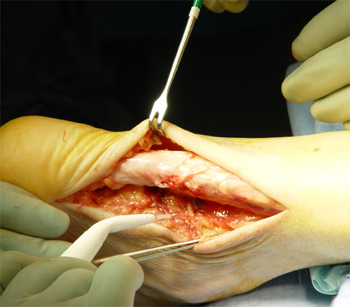 Achilleus Tendon Surgery
